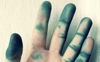 Как смыть зеленку с кожи. Как безопасно и качественно отмыть зеленку с рук и тела