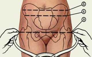 Наружный прямой размер таза. Исследование таза беременной. Крестцовый ромб (ромб Михаэлиса)