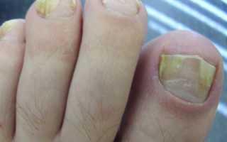 Почему происходит утолщение ногтей на ногах. Утолщение ногтей на ногах: причины, диагностика