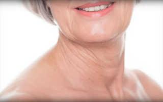 Как убрать дряблую кожу на шее. Раскрываем секреты, как подтянуть дряблую кожу на шее дома