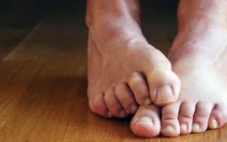 Симптомы и стадии грибка ногтей на ногах. Как распознать грибок на ногах в начальной стадии