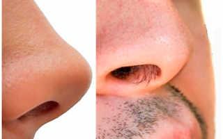 Методы удаления волос в носу. Советы косметологов, как удалить волосы в носу в домашних условиях