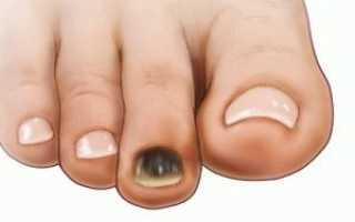 Почему темнеют ногти на ногах. Что делать, если ногти на ногах темнеют и чернеют