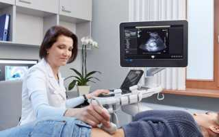 Ультразвуковая диагностика почек беременной и плода. Проведение узи почек при беременности
