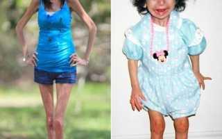 Самые худые люди в мире (13 фото). Про худых девушек () Самые красивые худые девушки