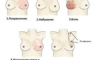 Застудила грудь кормлю грудью. Если застудила грудные железы кормящая мама как их лечить