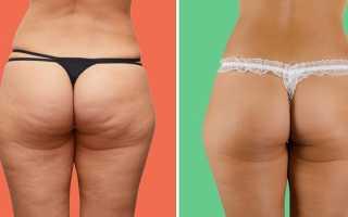 Целлюлит у худых — причины и лечение. Целлюлит у худых: причины появления, как избавиться