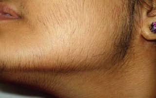 Как удалить волосы на лице девушке. Как просто и легко удалить волосы на лице в домашних условиях