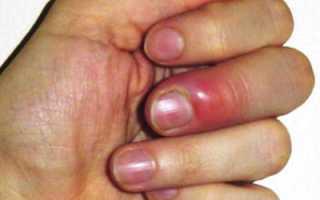 Нарыв на безымянном пальце руки. Нарыв на пальце у ребенка. Лечение нарыва пальца мазями