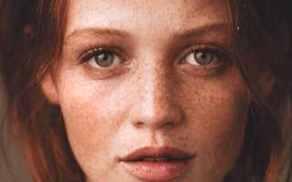 Народные средства лечения пигментации кожи. Рецепты народных средств от пигментации