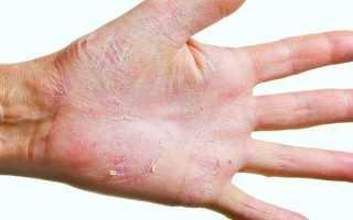 Как лечить грибковую инфекцию ногтей на руках? Грибок под ногтями на руках. Лечение