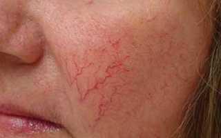 Как избавиться от венозной сетки на лице. Лечение близко расположенных сосудов и капиляров на лице
