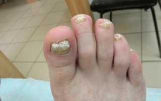 Способы лечения грибка на ногах. Грибок ногтей на ногах: чем лечить, самые эффективные средства