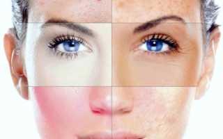 Косметические заболевания, недостатки, дефекты, их причины. Косметические дефекты кожи лица