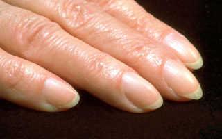 Почему при росте ногтей они загибаются. Почему загибаются ногти на руках: причины, лечение