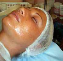Пилинг ТСА – фото до и после «Чудо-кислоты. Пилинг ТСА — глубокое очищение лица