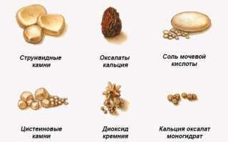 Вывести камни из почек в домашних условиях. Как вывести камни из почек народными средствами