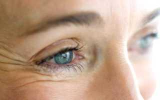Морщины вокруг глаз, народные средства. Как эффективно убрать морщины на лице в домашних условиях